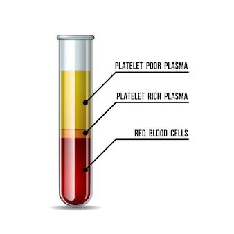 Tubo de ensayo lleno de sangre después de la centrifugación para procedimientos de inyección de prp.