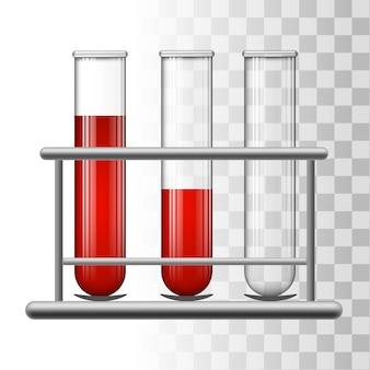 Tubos de ensayo médico con sangre en el estante.
