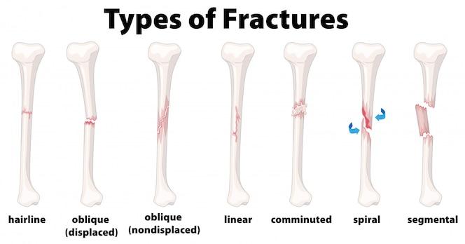 Un conjunto de fracturas óseas