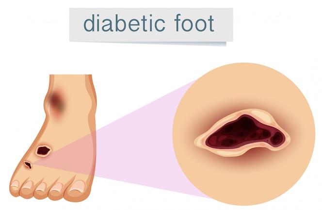 Un pie humano con diabético