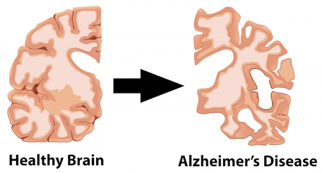 Una anatomía humana del cerebro