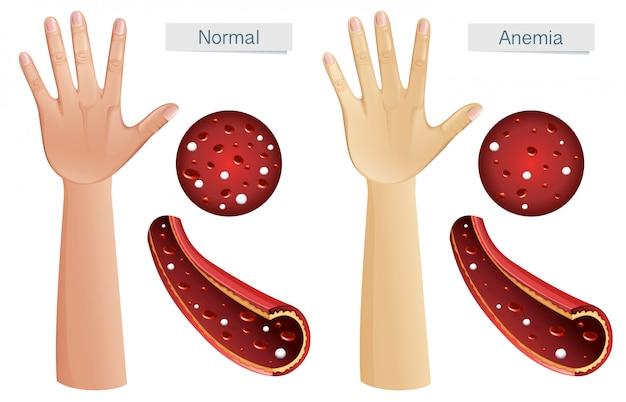Vector de anatomía humana de anemia
