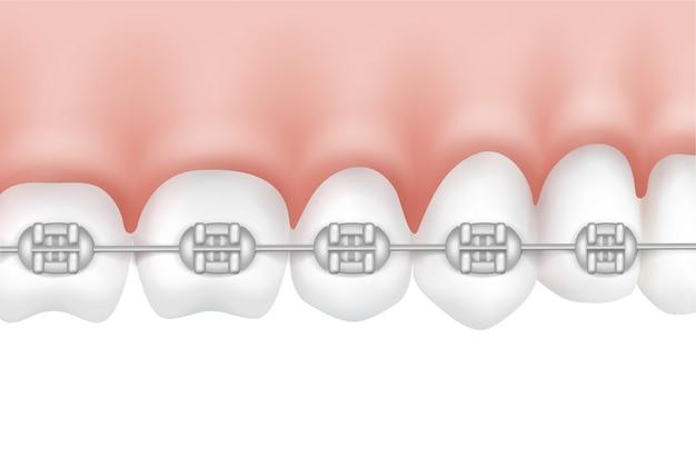 Vector de dientes humanos con vista lateral de aparatos de metal aislado sobre fondo blanco