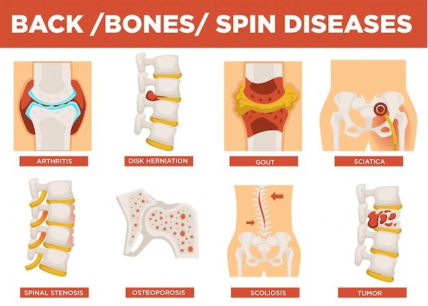 Vector de explicación de enfermedades de espalda, huesos y espín humano
