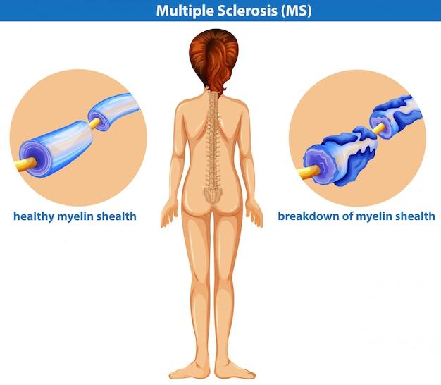 Un vector médico de la esclerosis múltiple