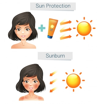 Vector que muestra la piel de las mujeres después del sol