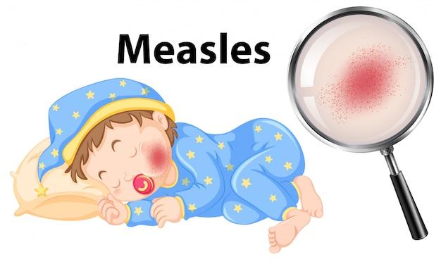Un vector de sarampión en la cara del bebé