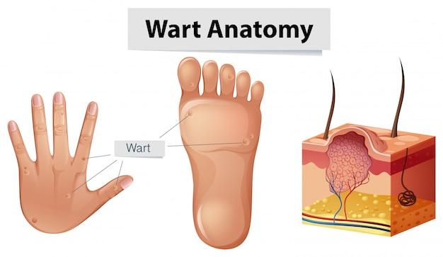 Verruga de anatomía humana en mano y pie