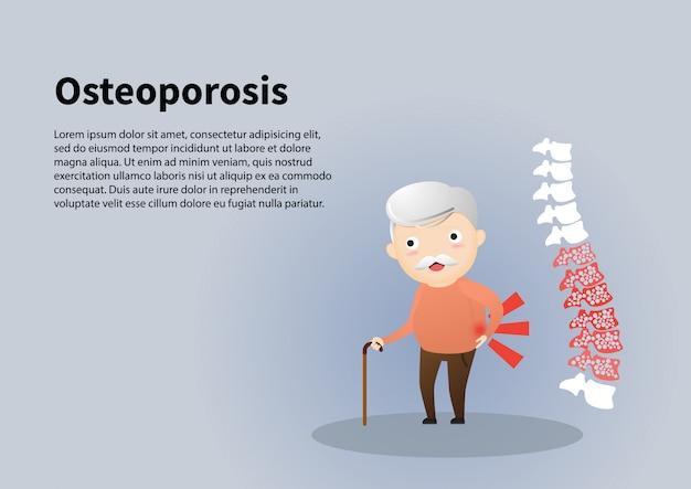 Viejo hombre con la ilustración de la osteoporosis.