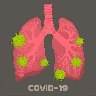 Virus en los pulmones humanos.