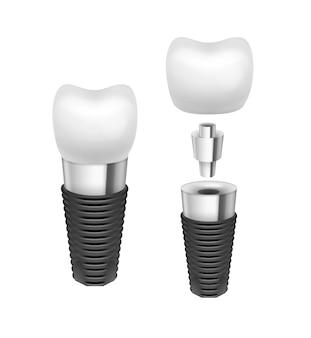 Vista lateral del implante dental desmontado del metal del vector aislado en el fondo blanco