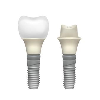 Vista lateral del implante dental montado de plástico vectorial aislado sobre fondo blanco.