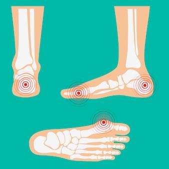 Zonas de dolor en la pierna humana.