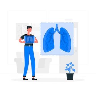 Abbildung des lungenkonzepts