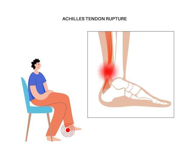 Achillessehnenruptur anatomisches poster. knöchelverletzung, bänderverstauchung, schmerzen und rissprobleme