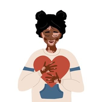 Afrikanerin mit vitiligo. selbstfürsorge und selbstliebe.