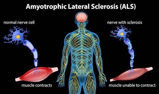 Anatomie der amyotrophen lateralsklerose