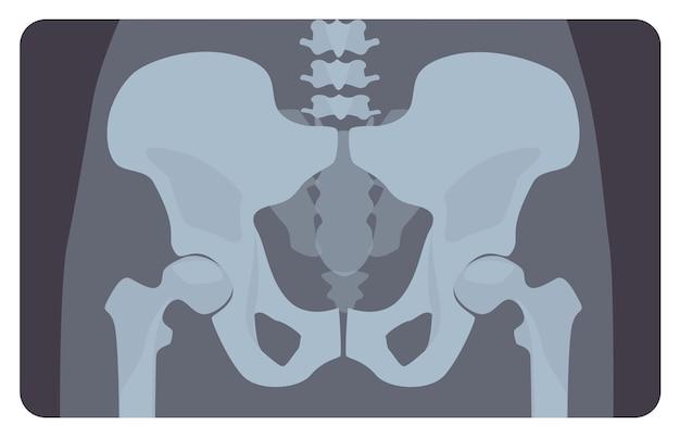 Anteriore röntgenaufnahme des menschlichen beckens oder hüftknochens mit lendenwirbelbereich. röntgenbild oder bild des menschlichen skelettsystems, vorderansicht. erkennung von medizinischen krankheiten. vektorillustration im flachen cartoon-stil