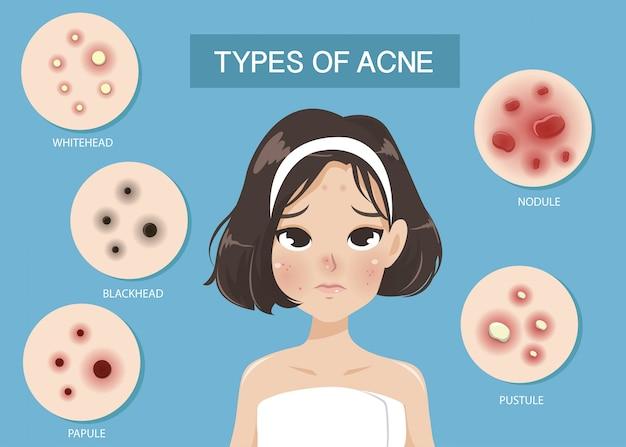 Arten von akne