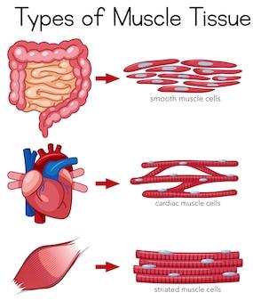 Arten von muskelgewebe