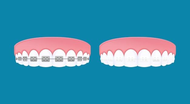 Arten von zahnspangensystem. zähne aus metall und durchsichtigen brackets.