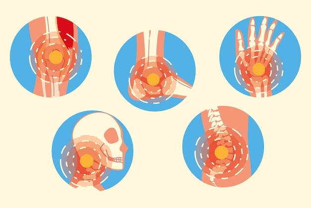 Arthritis gelenkschmerzsyndrom eingestellt