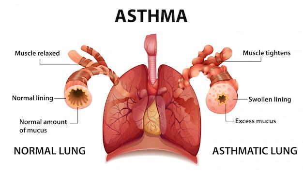 Asthma-diagramm der menschlichen anatomie