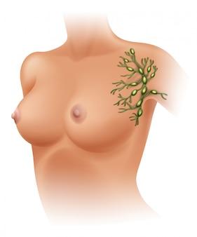 Axillare lymphknoten