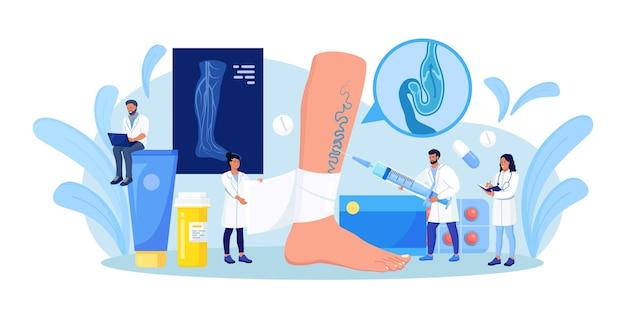 Behandlung von venenthrombose und krampfadern. winzige chirurgen behandeln gefäßerkrankungen, legen einen engen verband an. arzt in der nähe von big foot mit erkrankten venen. doppler-sonographie der arterien der unteren extremität