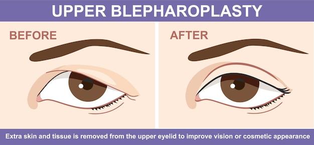 Blepharoplastik des augenlids vorher und nachher