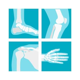 Cartoon human joints set röntgen für die medizinische diagnostik im gesundheitswesen. Premium Vektoren