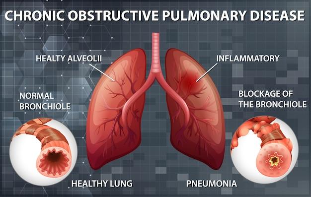 Chronisch obstruktive lungenerkrankung