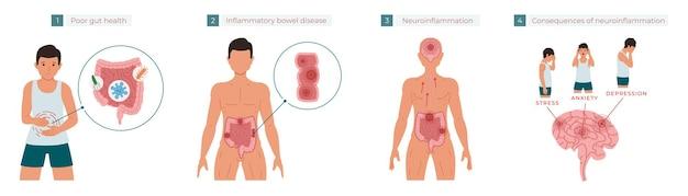 Chronische entzündung, die stressangst und depression verursacht