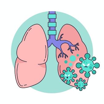 Coronavirus penumonia illustration