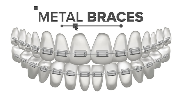 Darstellung der zähne mit metallklammern gesetzt