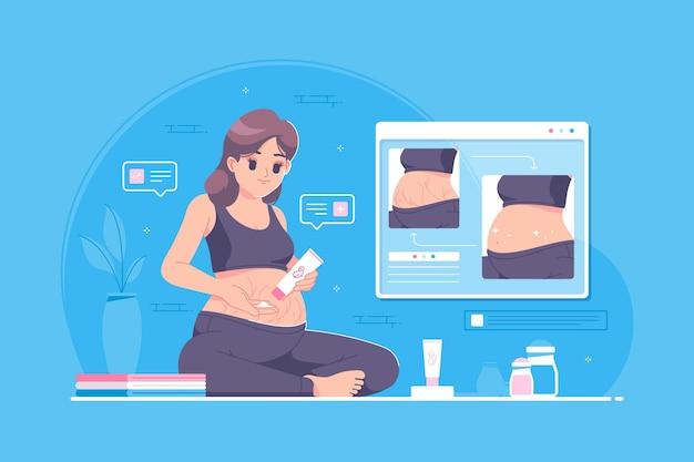 Dehnungsstreifen-behandlung in der illustration der schwangeren frauen