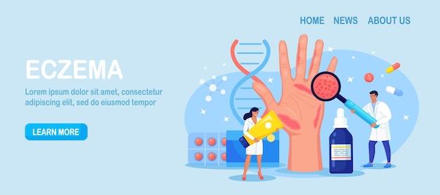 Dermatologe exam big hand mit roter haut und ras. schuppenflechte, vitiligo, dermatitis. ekzem - entzündung der hautkrankheit. folgen von unsachgemäßer pflege, häufigem händewaschen, desinfektion
