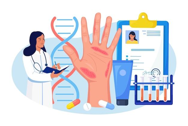 Dermatologe und große hand mit roter haut und hautausschlag im hintergrund. schuppenflechte, vitiligo, dermatitis. ekzem - entzündung der hautkrankheit. folgen von unsachgemäßer pflege, häufigem händewaschen, desinfektion