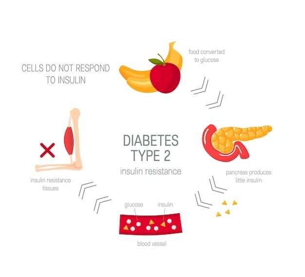 Diabetes typ 2 konzept. medizinisches diagramm im flachen stil.