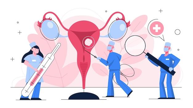Diagnose von gebärmutterkrebs. idee der gesundheit und medizinischen behandlung. arzt überprüfen sie eine gebärmutter. erkrankung des weiblichen fortpflanzungssystems. illustration