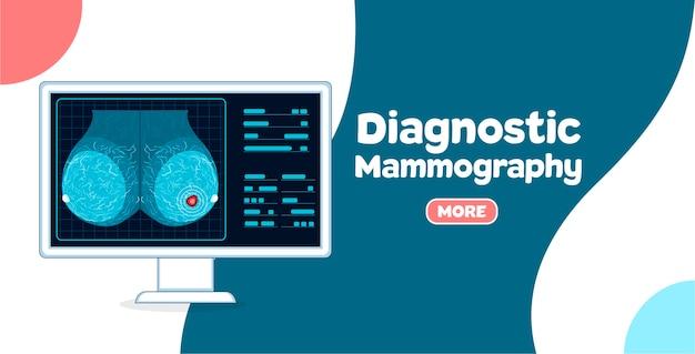 Diagnostische mammographie. mammographie-untersuchungsverfahren in der modernen klinik. prävention von brustkrebs