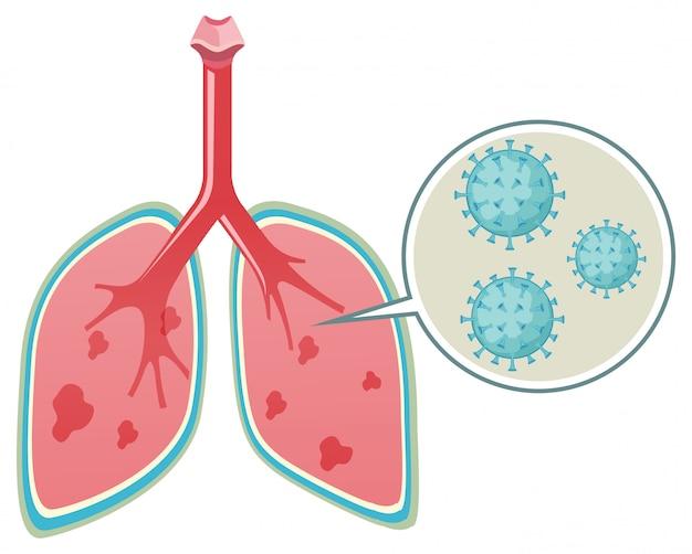 Diagramm, das das virus in der menschlichen lunge auf weiß zeigt
