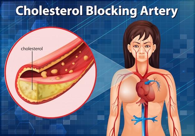 Diagramm, das die cholesterin blockierende arterie im menschlichen körper zeigt