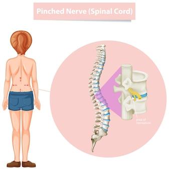 Diagramm, das eingeklemmten nerv zeigt