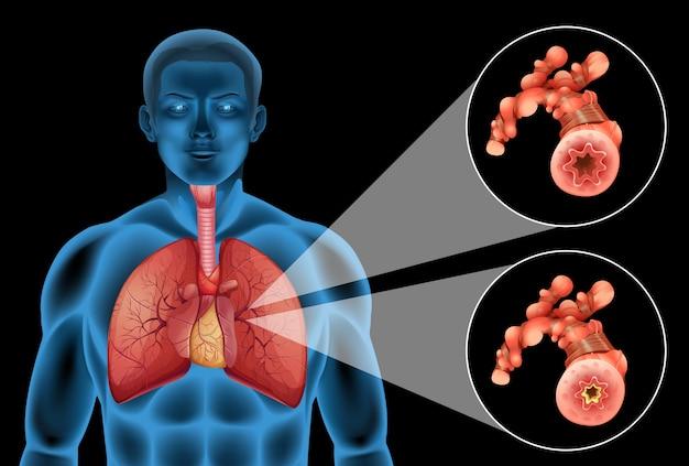 Diagramm, das menschliche lungen und krankheit zeigt