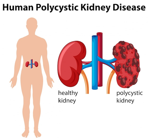 Diagramm, das menschliche polyzystische nierenerkrankung zeigt