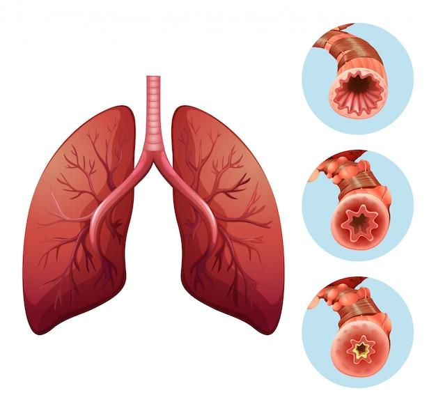Diagramm, das verschiedene stadien der lungenentzündung zeigt