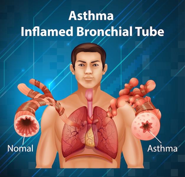 Diagramm der menschlichen anatomie asthma entzündete bronchien
