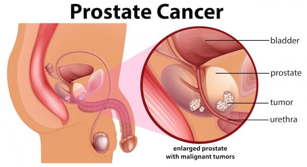 Diagramm des prostatakrebses