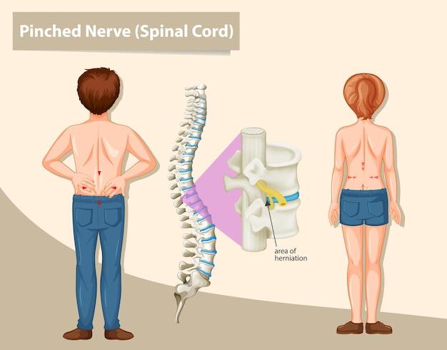 Diagramm mit eingeklemmtem nerv beim menschen